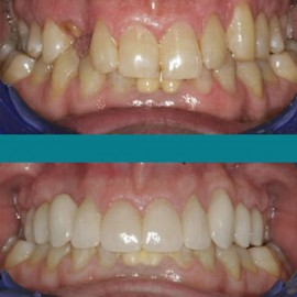 Finally Ready from CEREC Online